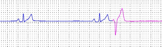 Holter monitor report that shows abnormal heart beats...